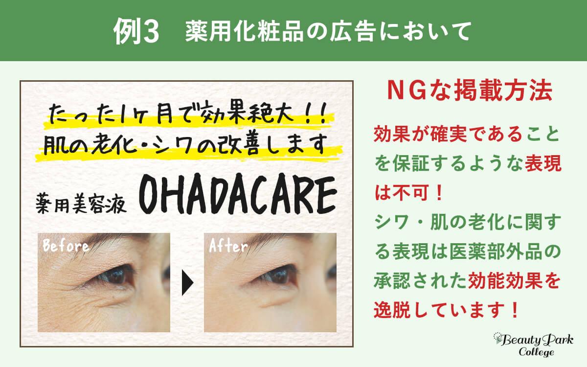 例3.薬用化粧品の広告においてNGな掲載方法